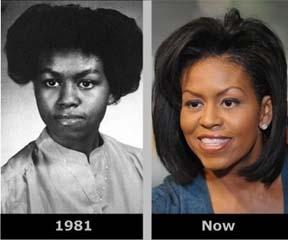 had surgery Has facial michele obama